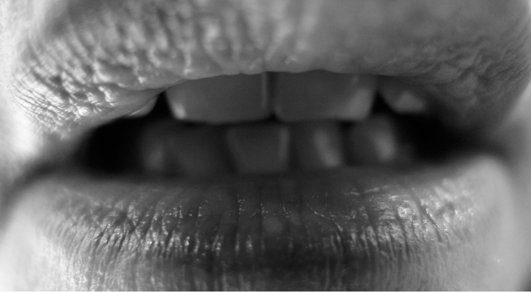 dechaussement-dentiste-lyon-05