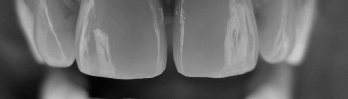 Traitement des maladies parodontales