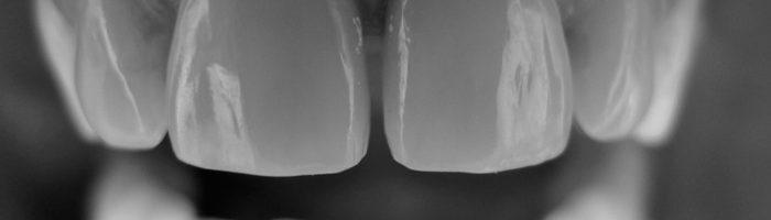 dr Guy Vibert chirurgien dentiste Lyon 4