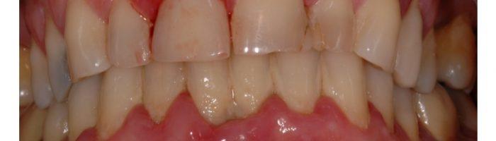 Parodontologie : les symptômes