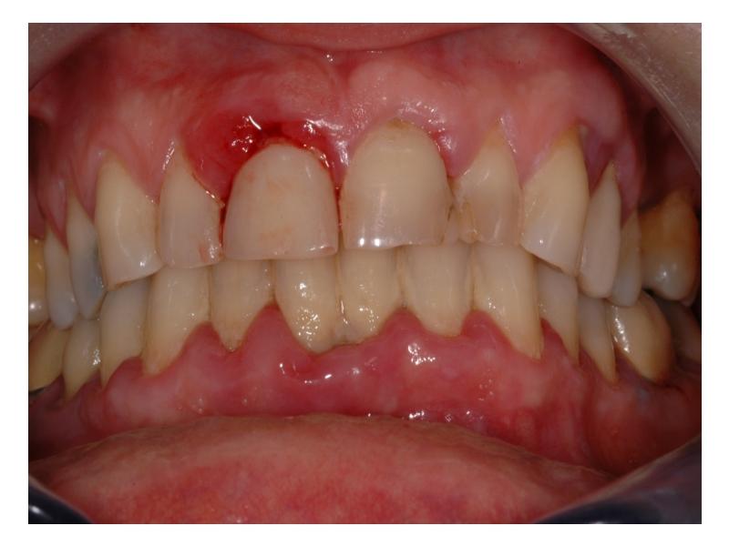 maladie parodontale
