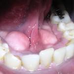plaque dentaire biofilm