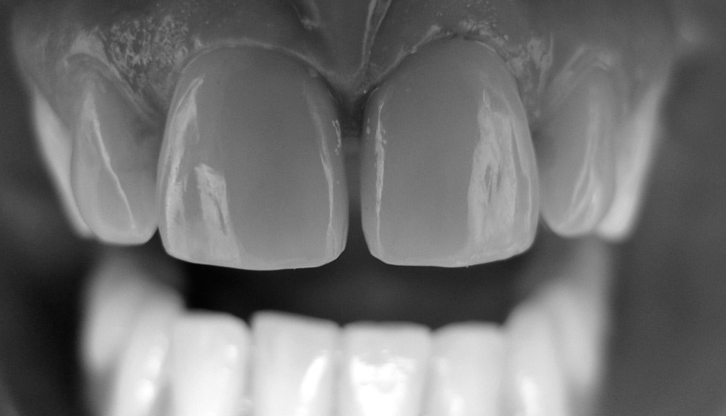 dechaussement dentiste lyon 4